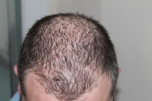 help prevent hair loss